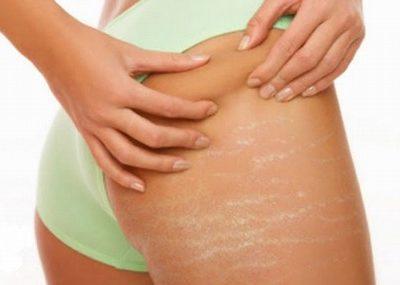 Khi bị rạn da ở mông ta cần phải làm gì đây?